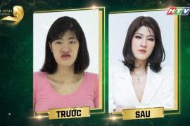 Trấn Thành, Minh Hằng đồng ý tài trợ 1 tỷ đồng phẫu thuật thẩm mỹ cho cô gái đến từ Ba Vì