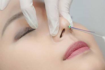 Nâng mũi bằng chỉ: Chuyên gia chỉ rõ những nguy cơ biến chứng, trước khi làm cần xem xét kỹ