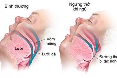 Dấu hiêu nhận biết chứng ngưng thở khi ngủ